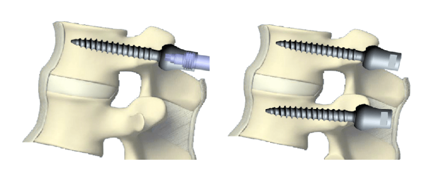 Pedicle Screw Systems Market to Witness Growth Acceleration During 2017 – 2027