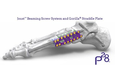Photo of Paragon 28® launches the industry's most robust screw and instrumentation system for addressing Charcot arthropathy – Joust™ Beaming Screw System