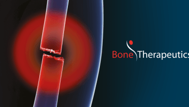 Photo of Bone Therapeutics reports half year 2019 results