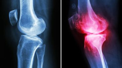 Photo of New research ranks the effectiveness of nonsurgical treatments for knee osteoarthritis