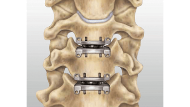 Photo of Artificial Discs Market 2018: Study on Eminent Players   Medtronic, Globus Medical, Depuy Spine, NuVasive, Zimmer-Biomet, Stryker Corporation and Aesculap Implant System