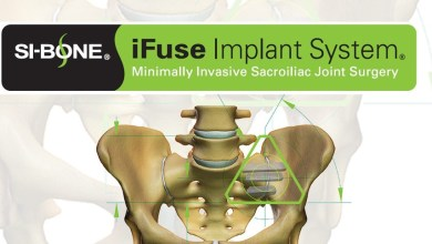 "Photo of SI-BONE, Inc. Announces 23 Commercial Health Insurance Plans Now ""Exclusively"" Cover Triangular iFuse Implant System®"