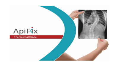 Photo of ApiFix Surpasses 250 Scoliosis Patients Treated and Six-Year Follow-up of Earliest Cases