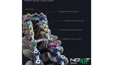 Photo of Nexxt Spine Launches SAXXONY® Posterior Cervical Thoracic Spine System