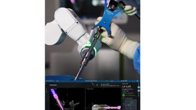 Photo of Medtronic Announces U.S. Commercial Launch of Mazor X Stealth(TM) Edition for Robotic-Assisted Spine Surgery