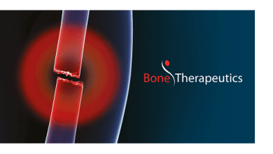 Photo of Bone Therapeutics announces 2018 full year results