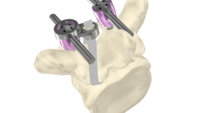 Photo of IMPLANET: Successful First JAZZ Cap® Surgeries in the U.S.