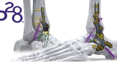 Photo of Paragon 28® Adds Comprehensive Ankle Fusion Plating System to its Robust Foot and Ankle Platform – Silverback™ Ankle Fusion Plating System