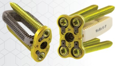 Photo of CoreLink Introduces Oro Lateral Plate System Designed for Optimum Versatility to Treat Patients Suffering From Spinal Conditions