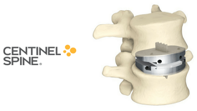 Photo of Centinel Spine Named to The Silicon Review's Top 50 Innovative Companies to Watch in 2019