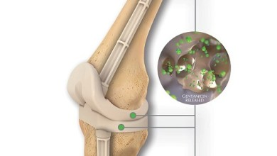 Photo of OsteoRemedies® Announces the Full Commercial Launch of the First Preformed Knee Spacer with Modular Stems