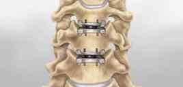 best spine surgeon in kolkata