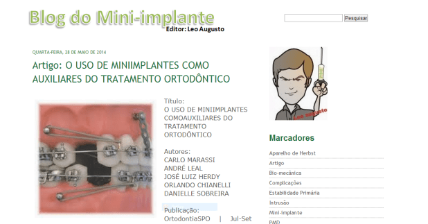 blog do mini-implante