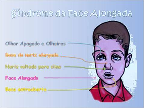 Sindrome da face alongada