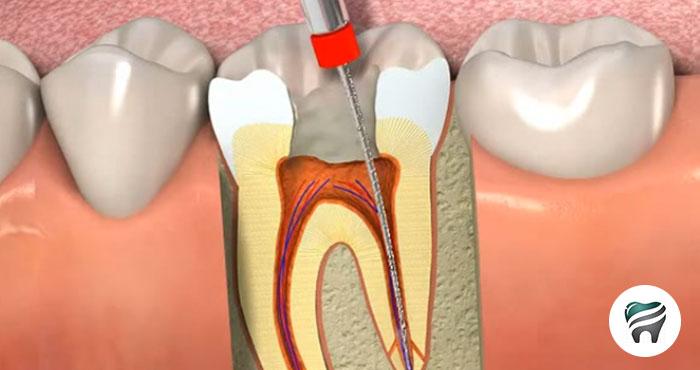 Qual E O Protocolo Atual Para Dentes Com Canal Completamente