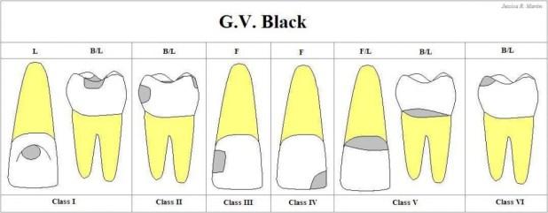 CAVIDADES by BLACK