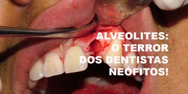 [ALVEOLITES] — O TERROR DOS DENTISTAS NEÓFITOS!