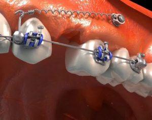 Mini_implantes_ortodonticos_1 (1)