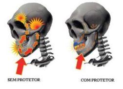 protetor-3