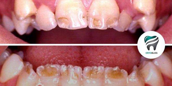 [URGENTE] A Zika e a Dengue, em crianças, podem provocar hipoplasias do esmalte nos dentes