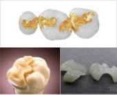perawatan tambal gigi berlubang Inlay Porselen, Zirkonia & Gold