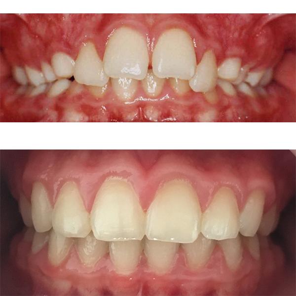 rezultate tratament aparat dentar fix