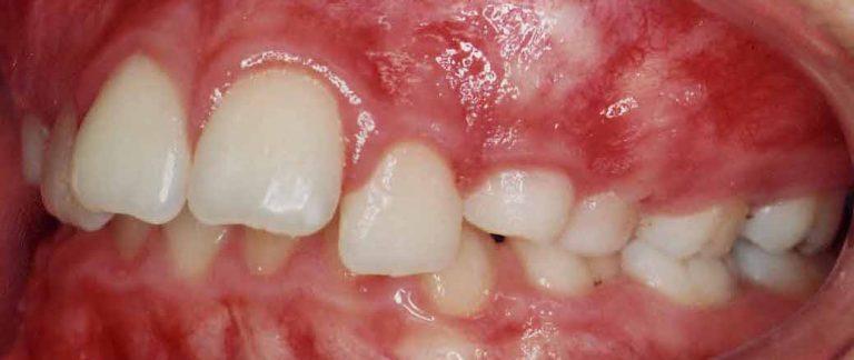 inghesuire dentara