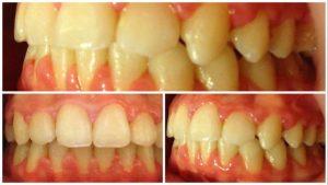 rezultat aparat ortodontic ceramic