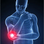 Magnetoterapia ed Epicondilite