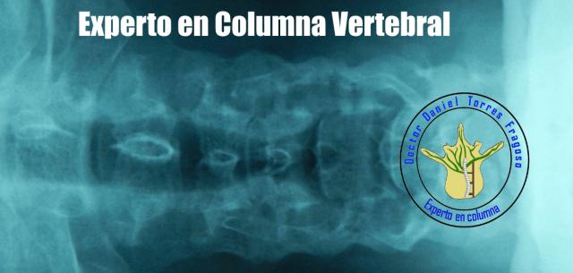 Columna vertebral, ceja