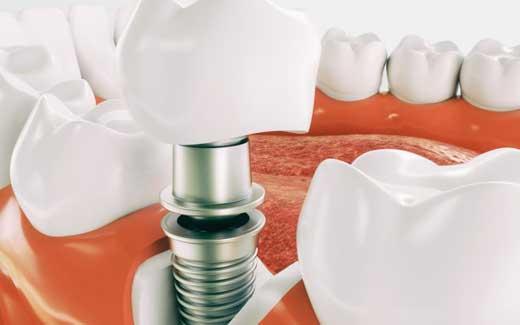 O Que são Implantes Dentários?