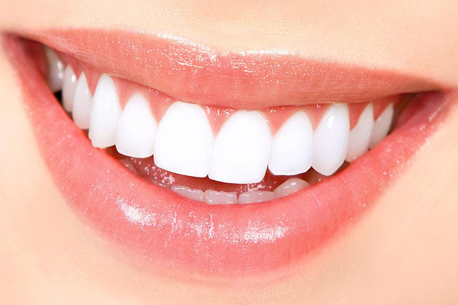 Clareamento Dental A Laser Ortozen