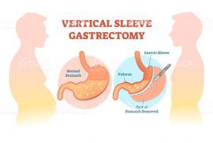 Gastrectomia vertical: o que é e para quem é indicado
