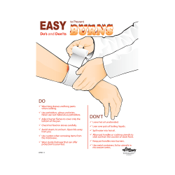 Easy To Prevent Burns Safety Poster