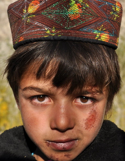 This six-year-old boy tripped and fell on his face two months ago. Health services in the area are poor. The Afghan government has promised to build a health clinic in the area, but it is yet to deliver.