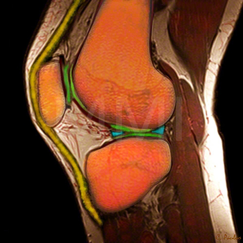 3-d Color MRI Knee Joint