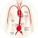 A abordaxe do aneurisma de aorta no CHUO