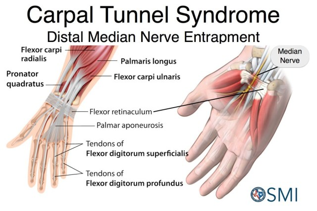 carpal tunnel syndrome 1024x683 - Carpal Tunnel Syndrome and Allergic Rhinitis - Testimonial