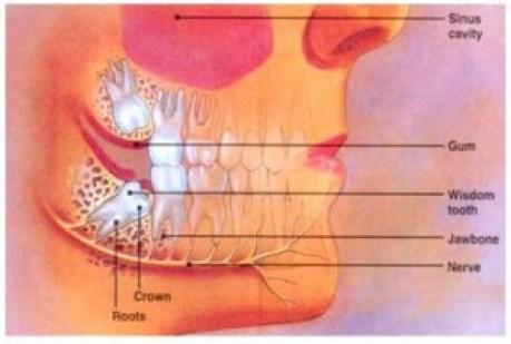 Wisdom-tooth-diagram