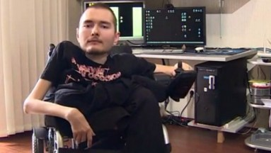 valery-spiridonov-head-transplant