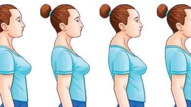 Photo of حَدَبة الرقبة  تصح بتصحيح الاختلالات العضلية وتغيير العادات اليومية