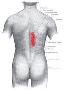 back-muscle-pain