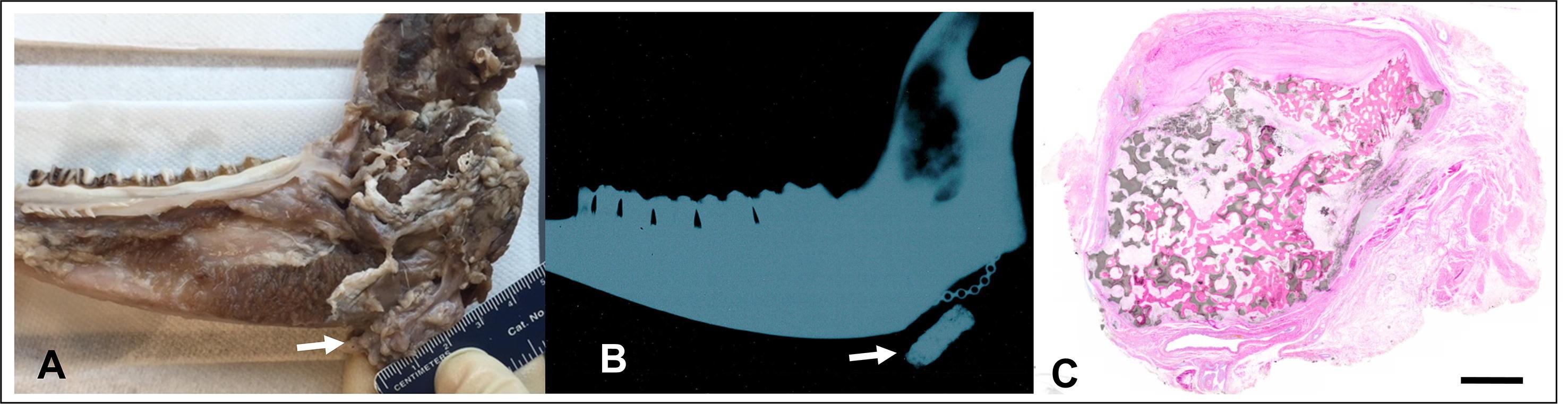 Reconstruction of Large Mandibular Defects Using Autologous Tissues Generated From In Vivo Bioreactors