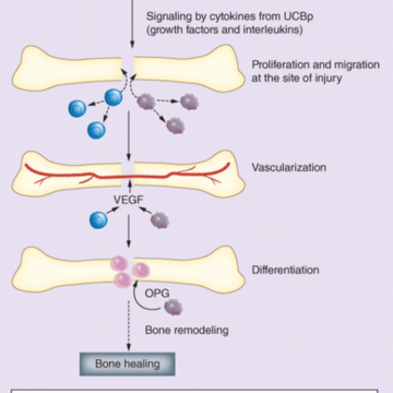 Cytokines in umbilical code blood-derived cellular product: a mechanistic insight into bone repair