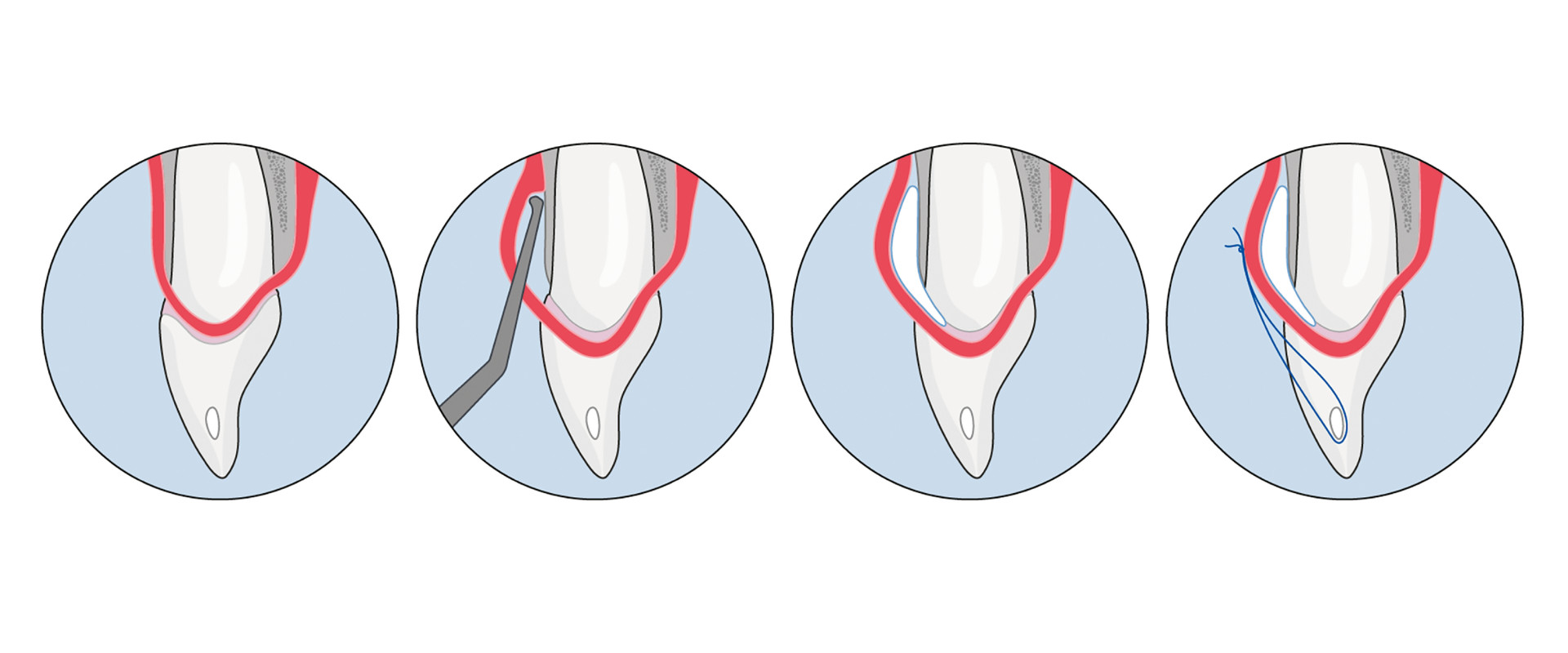 Recession Coverage: A less invasive tunneling technique for multiple recession defects