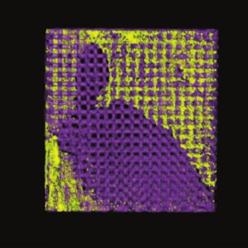 Dipyridamole Augments Three-Dimensionally Printed Bioactive Ceramic Scaffolds to Regenerate Craniofacial Bone