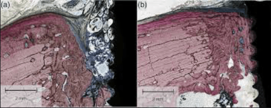 The effect of platelet-rich fibrin exudate addition to porous poly(lactic-co-glycolic acid) scaffold in bone healing: An in vivo study