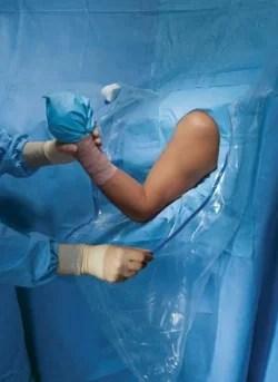 Τοποθέτηση ασθενούς για αρθροσκόπηση ώμου