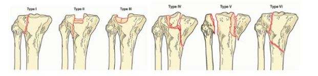 Κατάγματα του γόνατος