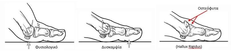 Δύσκαμπτος μεγάλος δάκτυλος (Hallux rigidus)